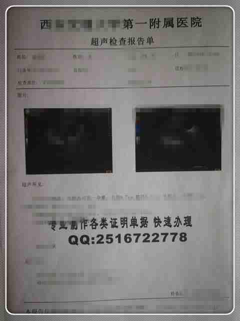 鹿泉第六医院人工流产手术报告单样品、医院怀孕报告、孕检单子图片模板、医院怀孕证明.jpg