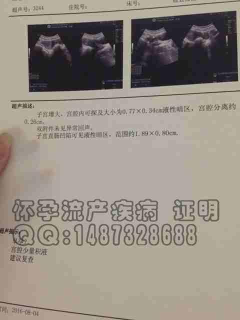 石家庄第六医院疾病打胎样板图片、妊娠检查B超报告、B超单样品、人工流产血检模板、妊.jpg