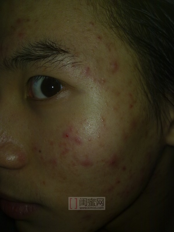 有痘痘的照片_练习一个女孩的通道去痘痘